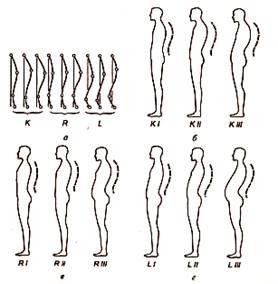 Корсеты ортопедические для исправления осанки