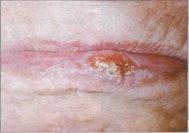 http://www.stomatologiya-v-moskve.su/wp-content/uploads/2013/06/borodavchatiy-predrak-krasnoy-kaymi-gub.jpg