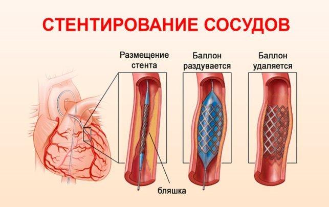 https://mirkardio.ru/wp-content/uploads/2017/10/simptomy-predynfarktnoe-sostoyanie_4.jpg