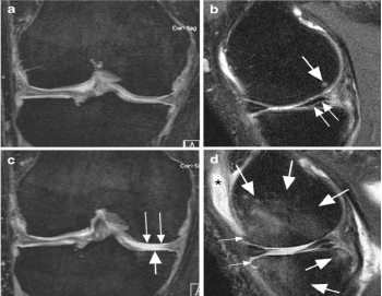Описание: Fig. 3 Cartilage loss in a patient with baseline meniscal tears in the right knee. ( A ) Coronal DESS MRI at baseline shows normal cartilage at the medial tibiofemoral joint. ( B ) Sagittal intermediate- weighted fat-suppressed MRI at baseline shows a horizontal tear of the posterior horn of the medial meniscus ( small arrows ) with small subchondral femoral bone marrow lesion ( large arrow ). ( C ) Coronal DESS MRI at two-year follow-up shows dramatic cartilage loss at both the weight- bearing medial femur ( small arrows ) and the tibia ( large arrow ), which is confirmed on ( D ), the sagittal intermediate- weighted fat-suppressed MRI. In addition, there are extensive tibial and femoral subchondral bone marrow lesions ( large arrows ) and new joint effusion ( asterisk ). Also, a slight increase in the size of the anterior femoral and tibial osteophytes is observed ( small arrows )