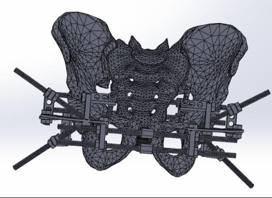 Модель костей таза с аппаратом наружной фиксации