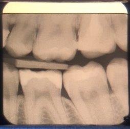 а) клинически не выявленный кариес зубов 25–26; б) скрытый кариес зубов 25–26 на снимке Bitewing