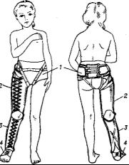 Схематическое изображение аппарата Гессинга на больной: 1 — тазовая часть (полукорсет); 2 — гильза бедра; 3 — гильза голени; 4 —башмачок.