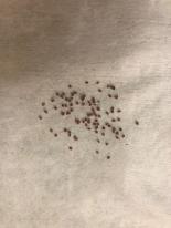 -2. Сбор семян с замороженных ягод